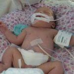 Потрібна допомога новонародженій дівчинці